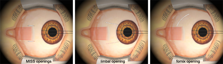 strabismus surgery incisions